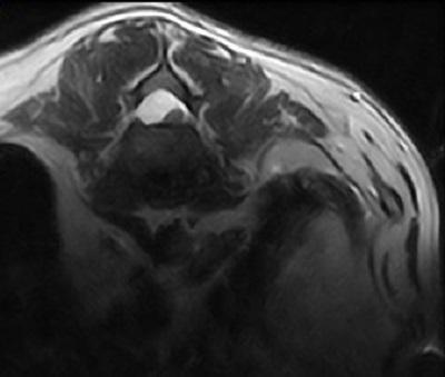 Опухоль головного мозга у собаки